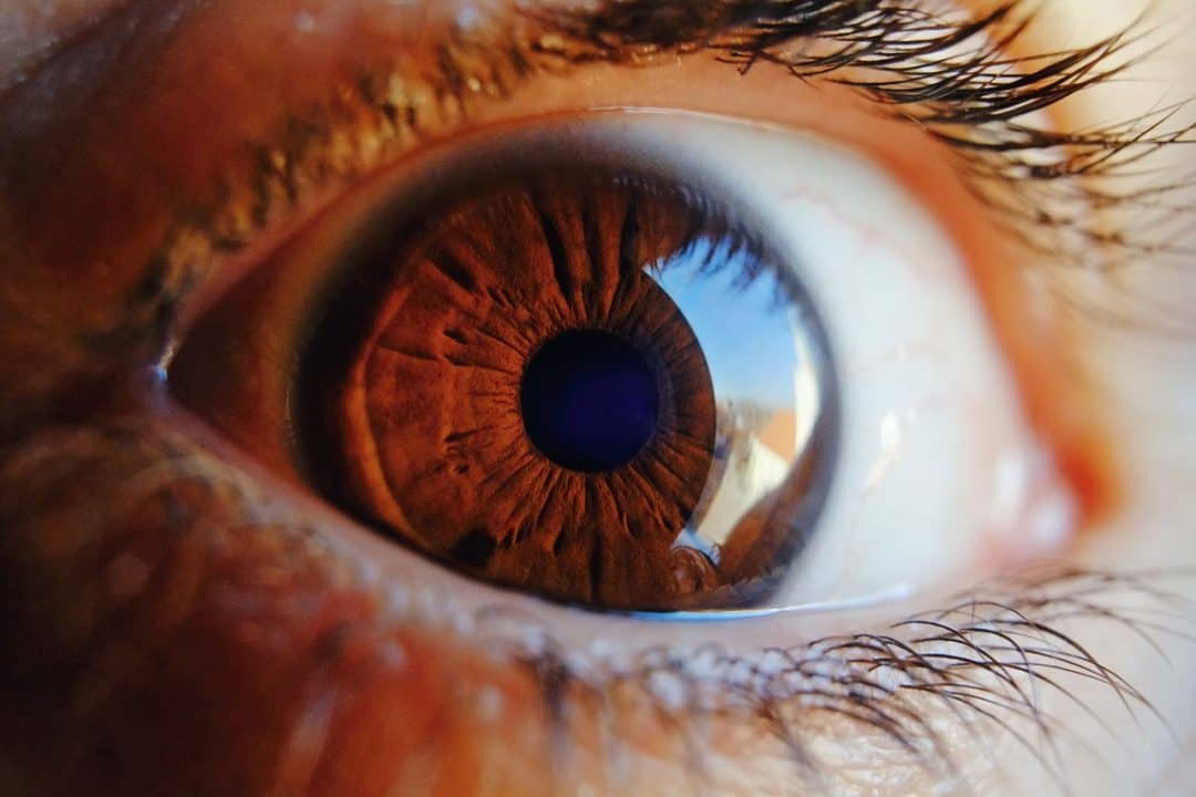 העין פתוחה